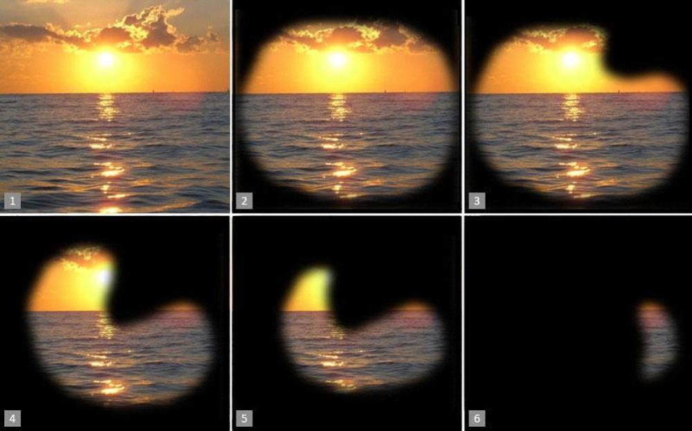 Так видят люди с разными стадиями глаукомы.