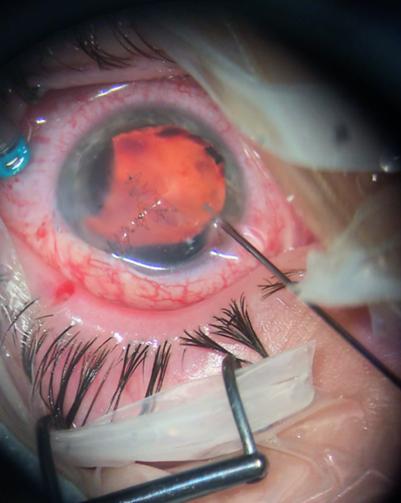 Осколок петарды удалили микропинцетом через рану.