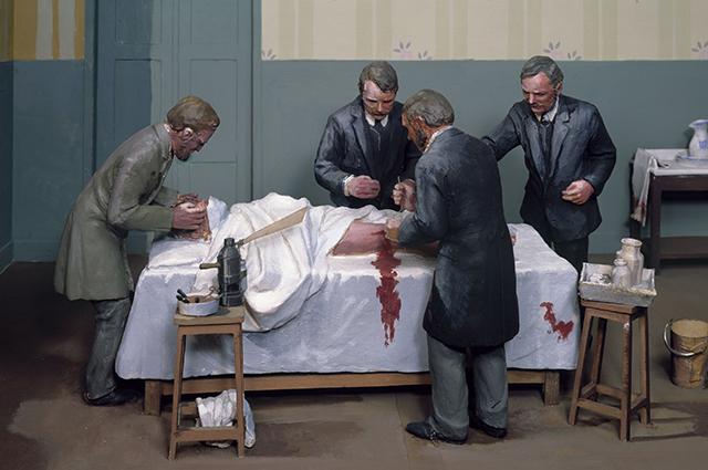 Операция, 1877 год. Диорама.