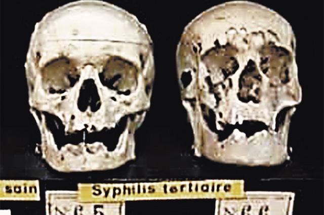 Черепа скончавшихся от сифилиса и его ослож- нений в результате экспериментов Катлера.
