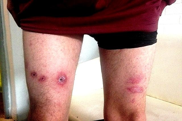 Раны и язвы шрамами остались на всем теле уроженца Белоруссии Николая, которого пытали сочинские