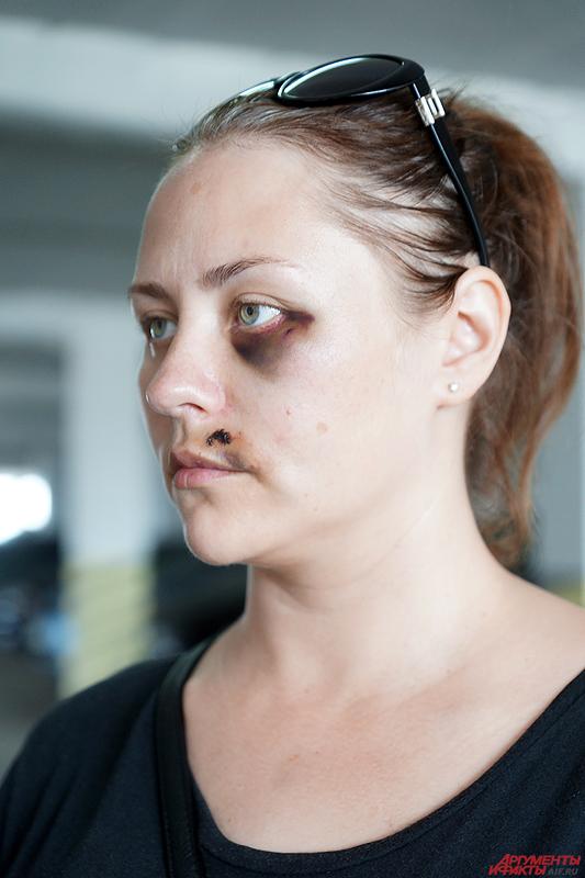 В больнице у Вероники диагностировали закрытую черепно-мозговую травму, сотрясение головного мозга и многочисленные ушибы лица