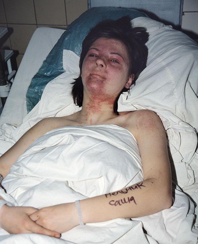 Александра Мельник, получившая травмы вовремя давки вподземном переходе, устанции метро «Немига». Больница скорой помощи города Минска.