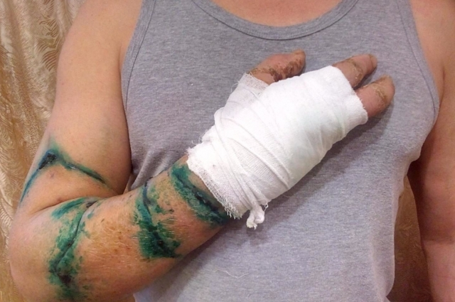 Суд постановил взыскать за повреждённую руку Рашида с цирка 2,5 миллиона рублей.