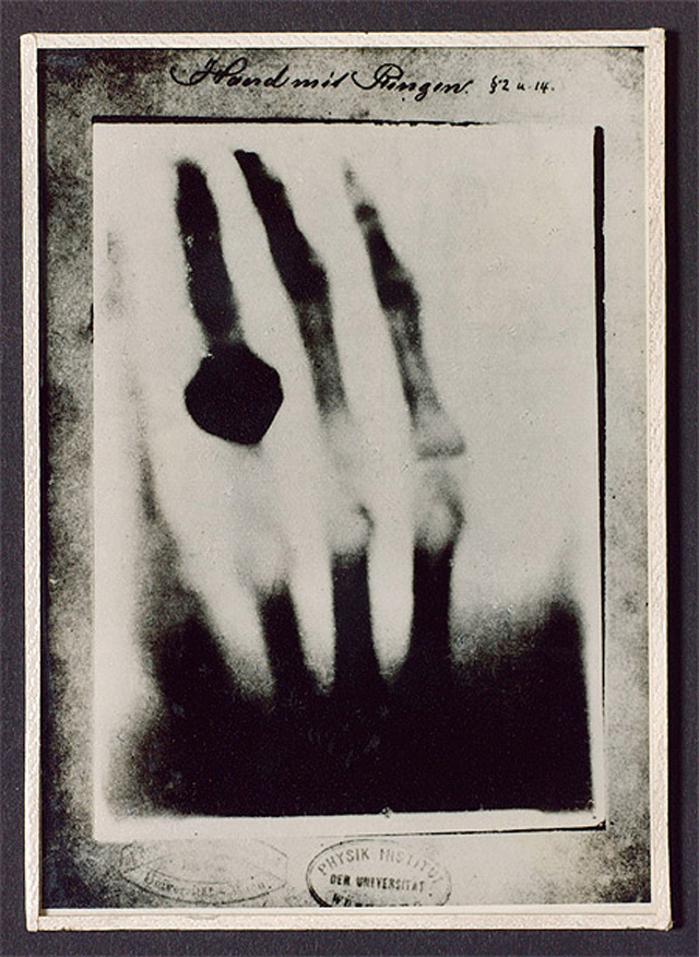 Рентгенограмма руки с кольцом. 1895 год