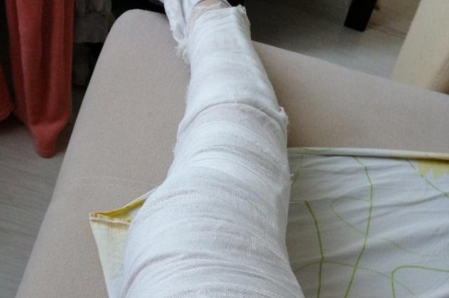 Водитель в ДТП не пострадал, а вот Елена получила тяжёлую травму колена.