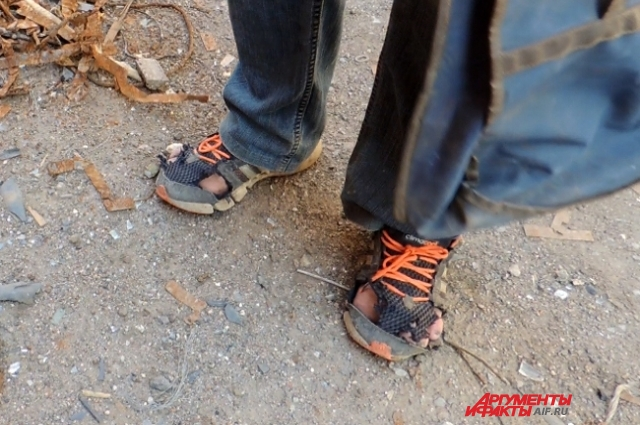 Игорь говорит, что не может носить другие кроссовки — нет пальцев на ногах.