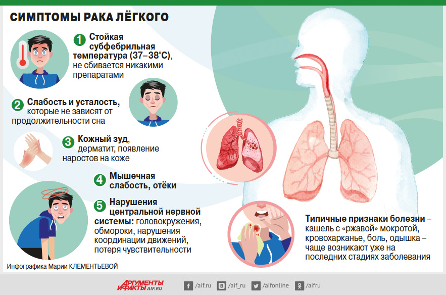 Инфографика, рак легких