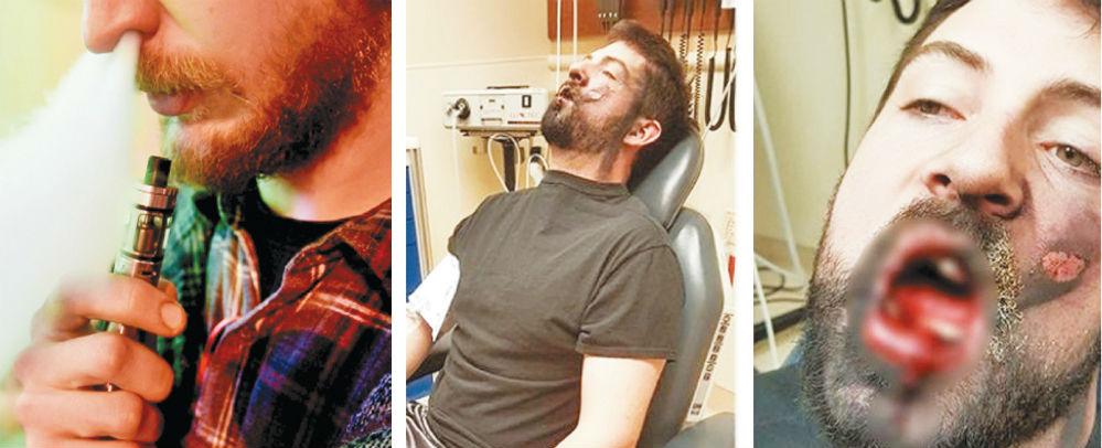 Электронная сигарета взорвалась во рту мужчины в штате Айдахо и выбила ему семь зубов. Снимки обезображенного лица с ожогами пострадавший опубликовал на своей странице в соцсетях: «Я «парю» (я знаю: это ужасно и не круто), но больше я этого делать не буду и надеюсь, что это поможет бросить и другим людям», — написал американец Эндрю Холл.