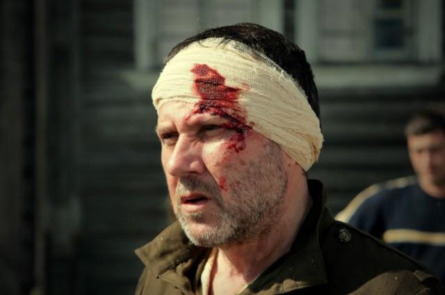 По сюжету фильма, герой Ганелина получает ранение.