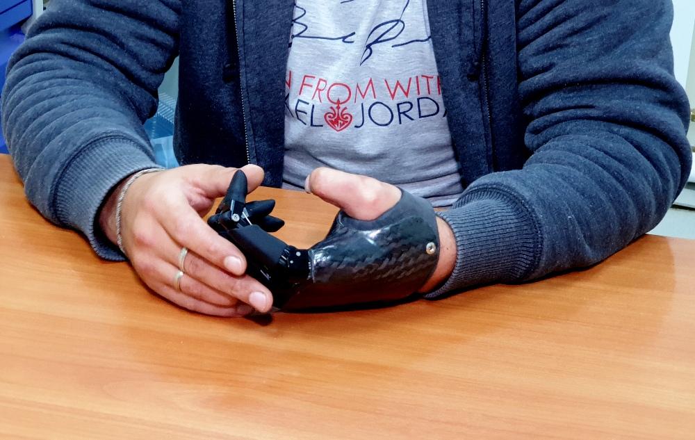 Стоимость протеза - около 6 млн рублей.