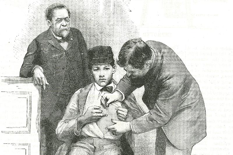 Вакцинация мальчика, укушенного бешеной собакой