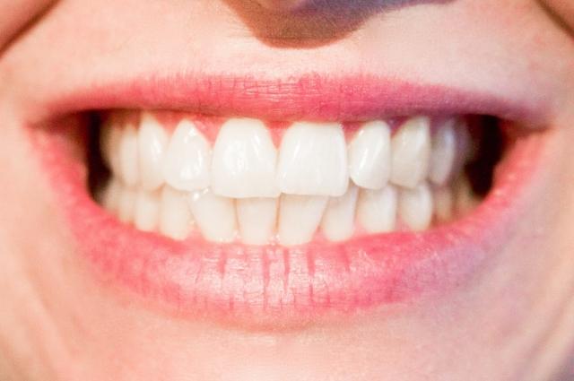 Сейчас существуют методы, которые позволяют восстановить зубы в кратчайшие сроки.