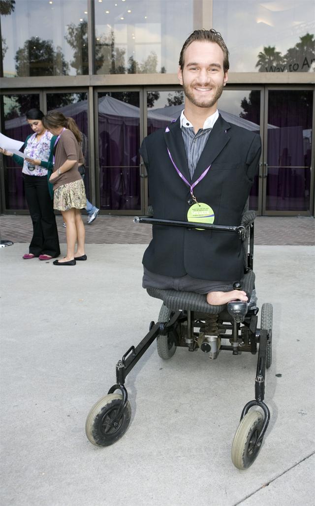 Люди без рук и ног фото