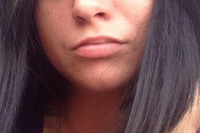 Так выглядели губы красноярки до инъекций.