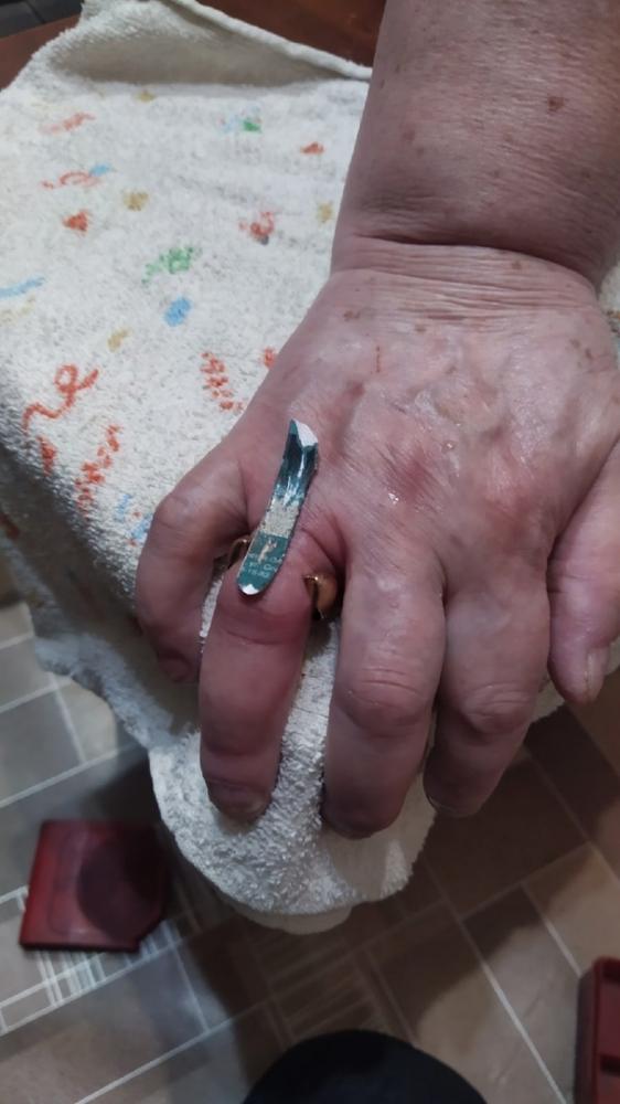 Палец удалось спасти.