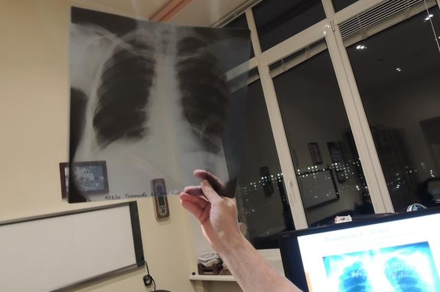 Для пациента рентгеновский снимок лёгких - больше, чем изображение на плёнке.