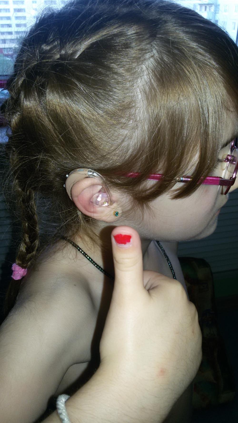 Теперь малышке не нужно читать по губам - она слышит!