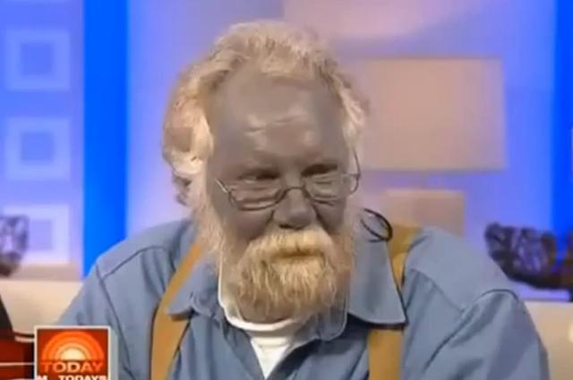 Пол Карасон, страдавший синдромом голубой кожи.