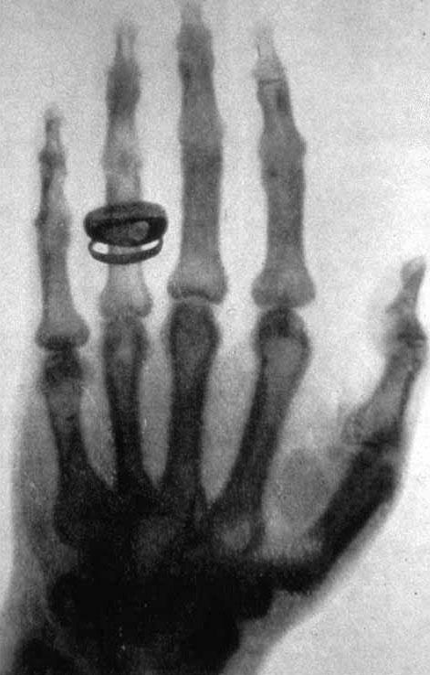 Photo of Albert von Kölliker's hand taken by Roentgen on January 23, 1896