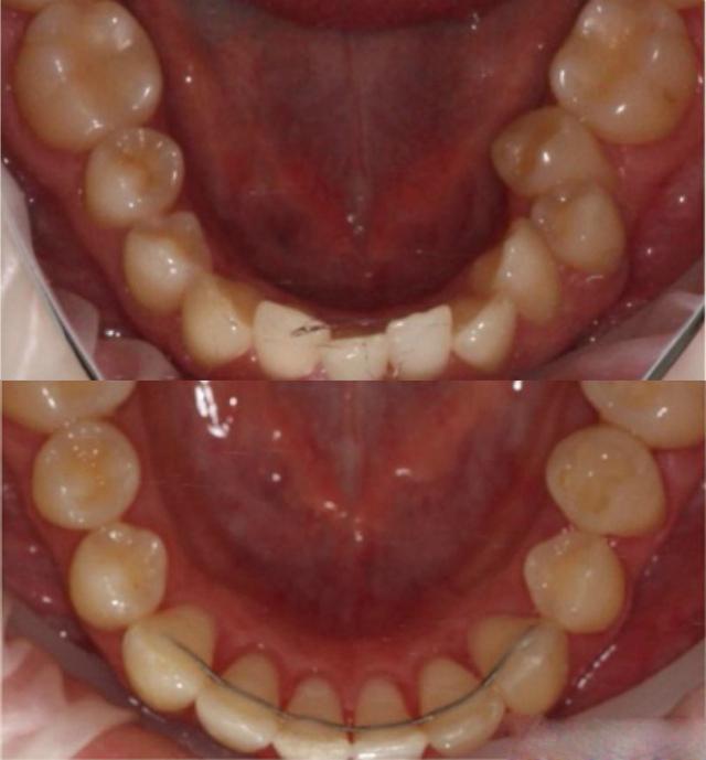 ДО и ПОСЛЕ: исправление прикуса и выравнивание зубов с помощью брекетов Damon Clear.