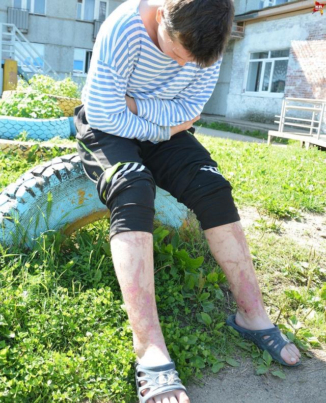 Серьёзную травму с загноением получил воспитанник интерната Влад Харченко.