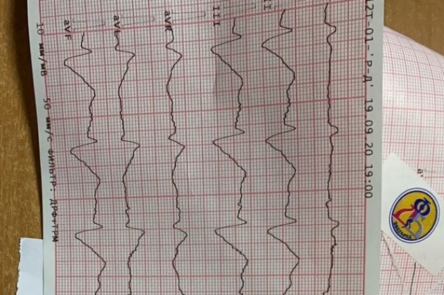 Исходная электрокардиограмма пациента.