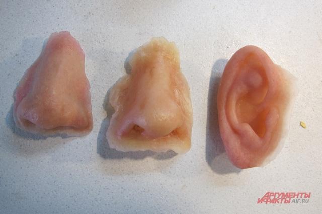 Протезы для лица (эпитезы).