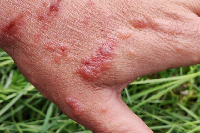На коже, куда попадает ядовитый сок,  образуются большие волдыри с жидкостью внутри. Прокалывать их нельзя.
