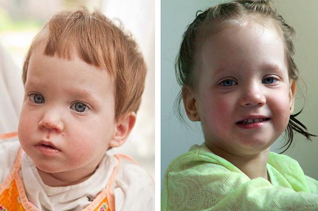 Аня до и после жизни в семье
