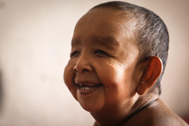 Четырехлетний ребенок из Бангладеша Байезид Хуссейн, больной прогерией.