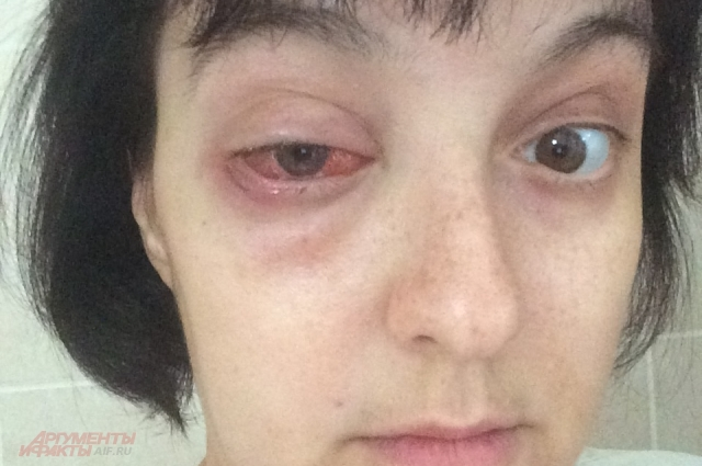 Как говорится, последствия лечения на лицо или на лице.