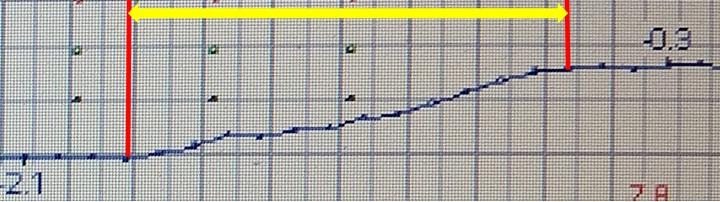 Фото № 4. Фрагмент графика управления стабилизатором при катастрофе Б737 в Казани. Расшифровка параметрических самописцев из опубликованный технических отчётов МАК