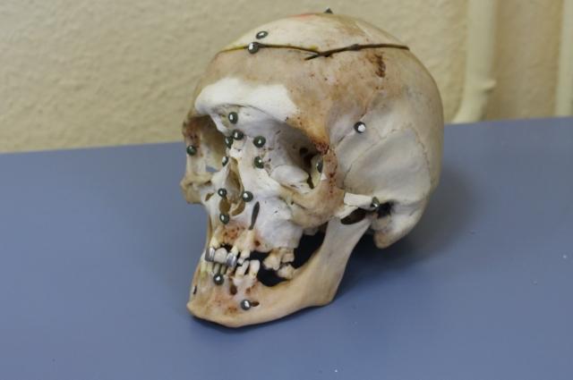 Это мужской череп, экспертам для восстановления облика человека важно, чтобы у него была лицевая часть.
