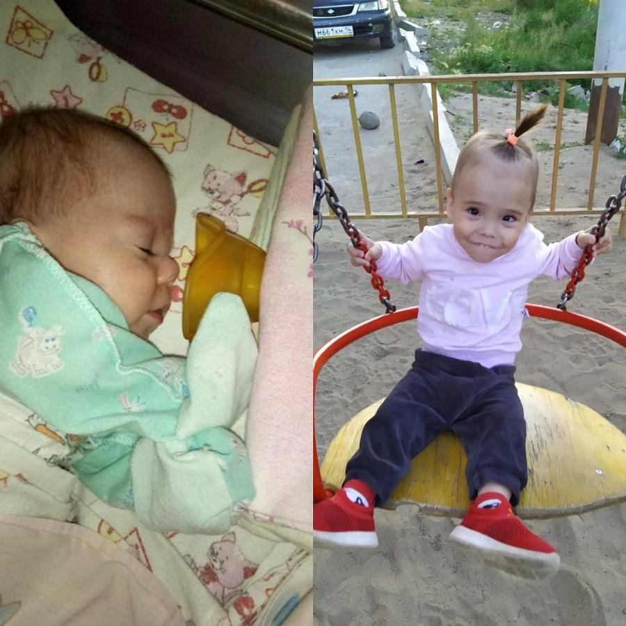 Маленькая Наташа родилась на 25 неделе беременности.