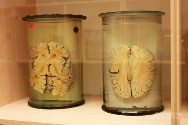 Человеческие органы в формалине одно из немногих учебных пособий, доступных сегодня студентам-медикам
