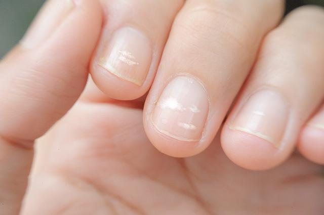 Image result for Белые пятна на ногтях.